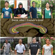 The corpus callosum of Albert Einstein's brain – New Publication
